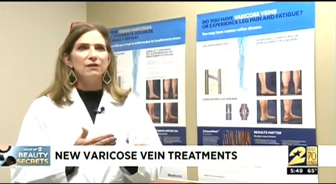 image from Treatment Options for Varicose Veins by Dr. Sheila Coogan on KPRC Channel 2 News