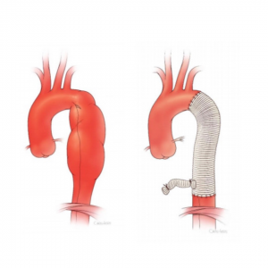 image from Open Repair of descending thoracic aortic aneurysm is preferred in patients younger than 50 years