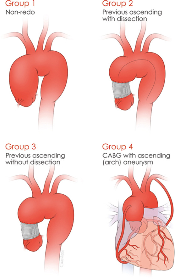 Proximal Aortic Repair Groups