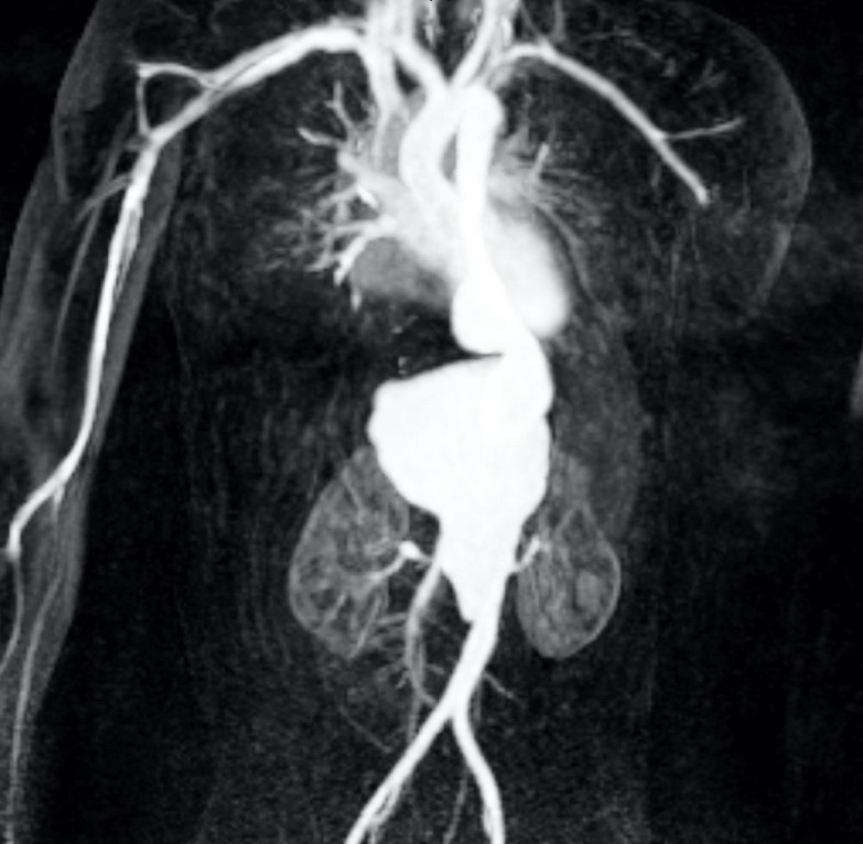 image from Open Thoracoabdominal Aneurysm Repair in a 4-Year-Old with Tuberous Sclerosis