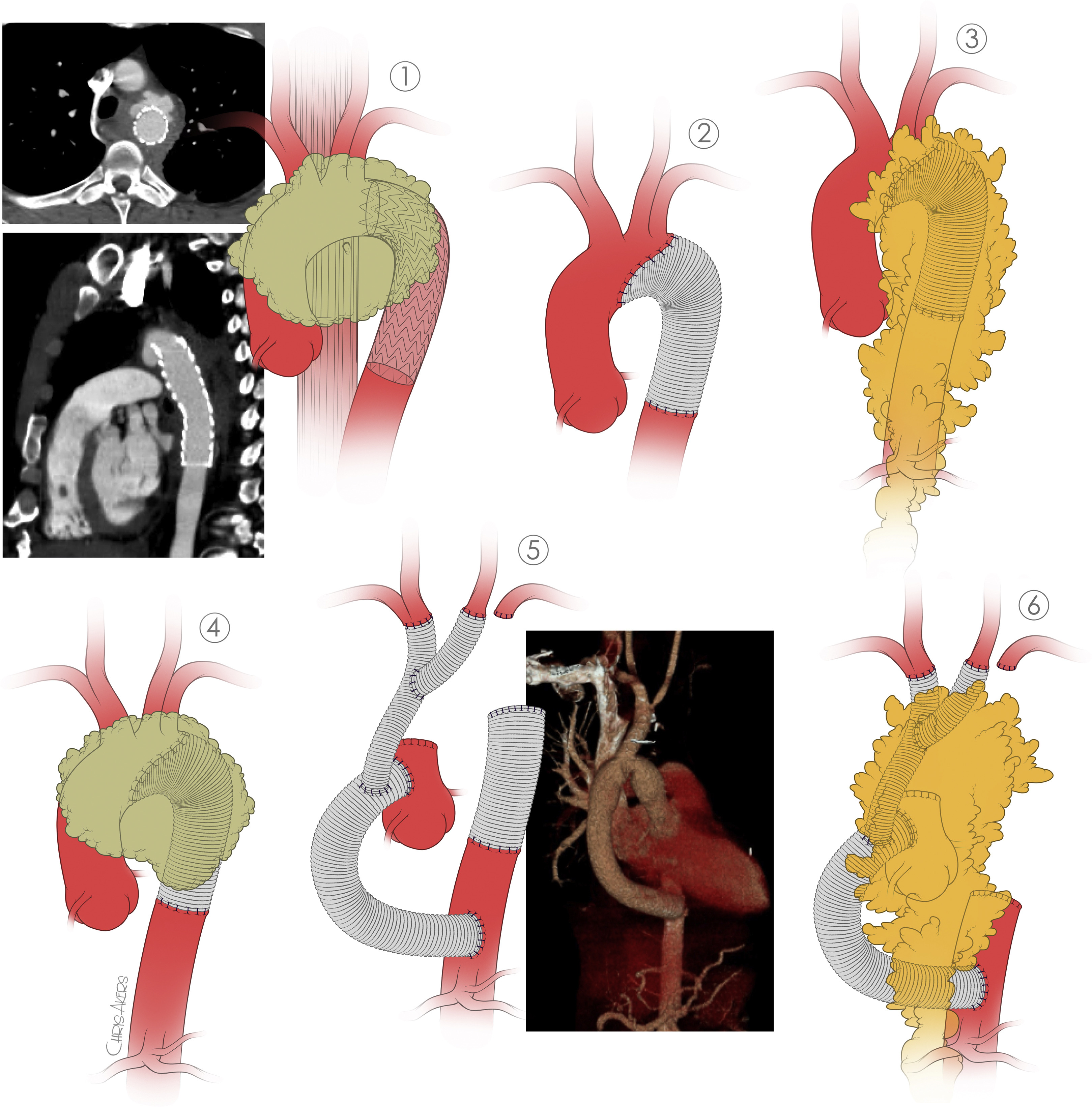 """image from """"Resection and replacement of thoracic aortic graft infections"""" set as a JTCVS Featured Article"""