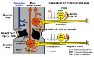 Nociceptor SA model of SCI pain