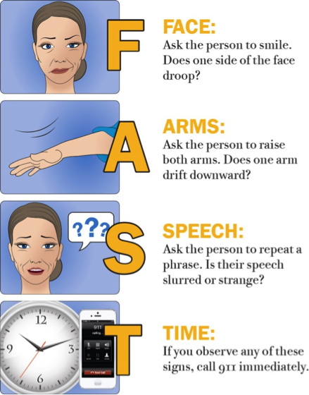 Stroke Symptoms, Prevention, and Clinics | McGovern Medical