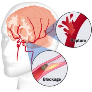 Stroke Symptoms Prevention And Clinics Mcgovern Medical School