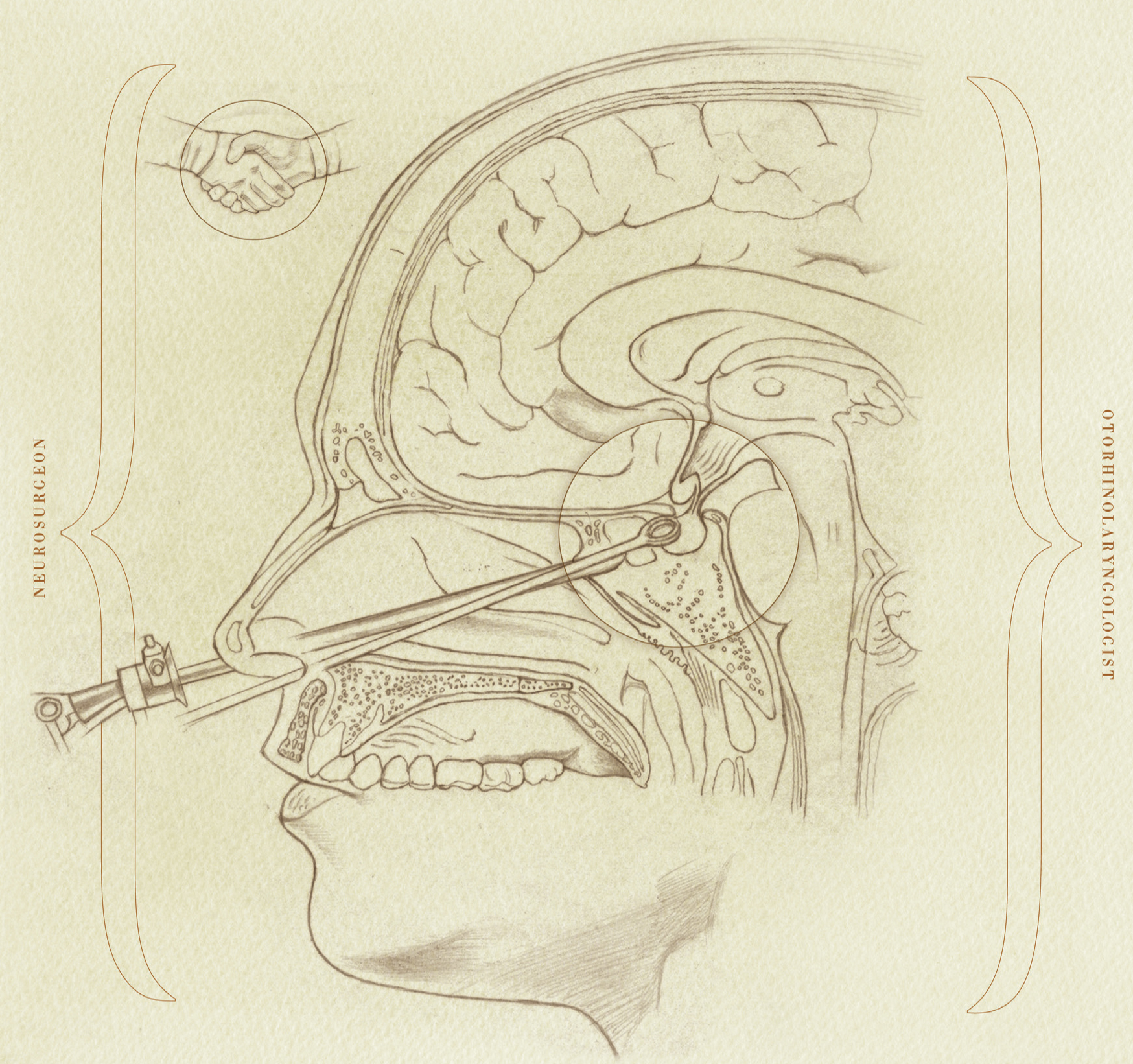 image from A Collaborative Approach Offers Patients a Less Invasive Alternative for Surgical Excision of Pituitary Tumors