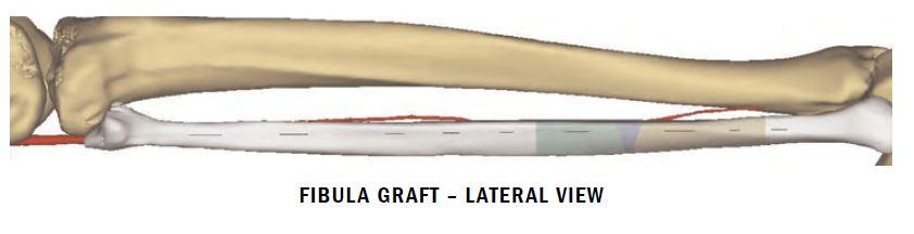 Fibula diagram