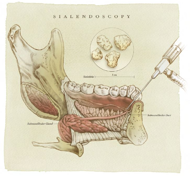 Sialendoscopy REV