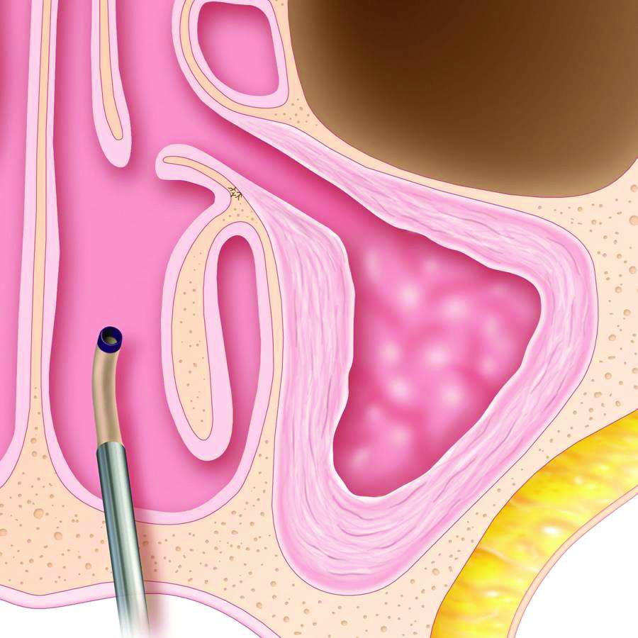 Maxillary Procedure step 4